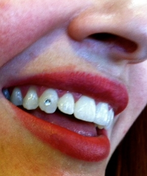 Tattoo Shops That Do Tooth Jewelry Near Me Tattoo Design